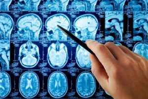 Important Things to Know About Brain Tumors